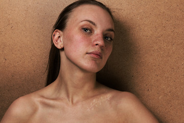 Closeup girl portrait with a scar on a clavicle after operation. Surgery concept.