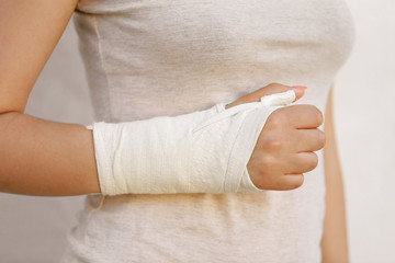 Young woman with her broken right arm