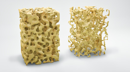 Bone structure 3d illustration, normal and with osteoporosis