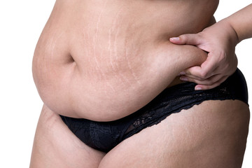 Fat female belly after pregnancy, stretch marks closeup