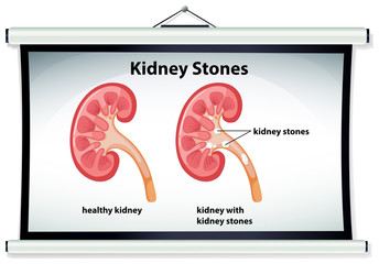Diagram showing kidney stones