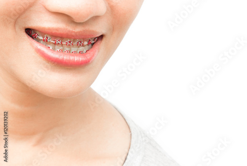 Quot Close Up Woman Smiling With Ceramic And Metal Braces On
