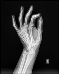 Hand xray of human in side view
