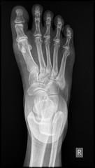 Radiograph of Human foot