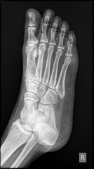 Side-Lateral view radiograph of human right foot