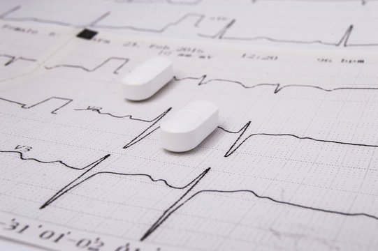 White oblong pill or tablets (for treatment of diseases of the cardiovascular system as an option - statin) lie on the paper electrocardiogram (EKG or ECG)