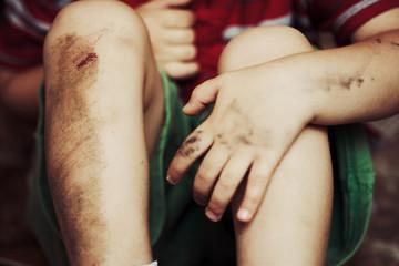 Injured knees
