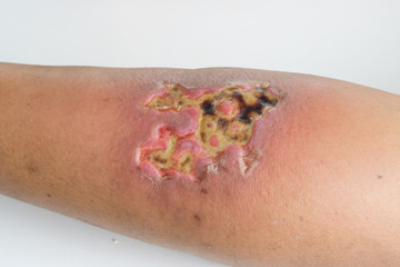 Serious open wound on a skin from hot water scald