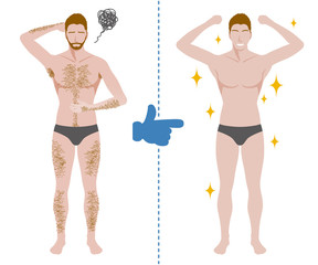men'a hair removal before after concept, unwanted hair, superfluous hair, vector illustration