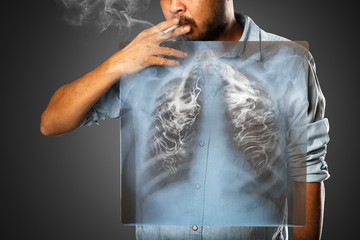 Man smoking with x-ray lung, Isolated on grey background