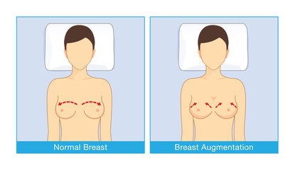 Mature breast pictures