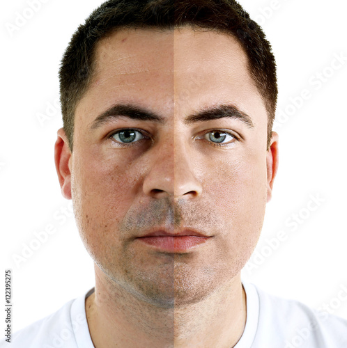 """""""Man Face Before And After Cosmetic Procedure. Plastic"""