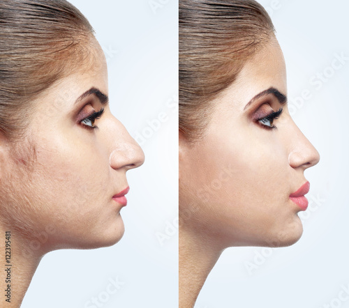 """""""Woman Face Before And After Cosmetic Procedure. Plastic"""