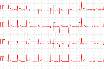 Typical human electrocardiogram, red graph with marks