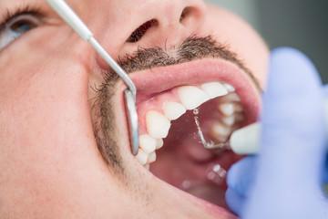 Removing dental plaque closeup
