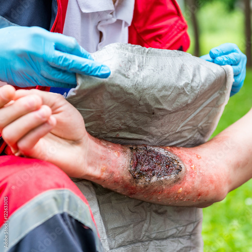 Third degree burn treatment  Paramedic training