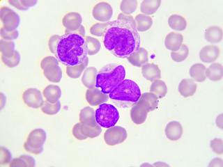 Leukemia cells in peripheral blood smear, Wright stain