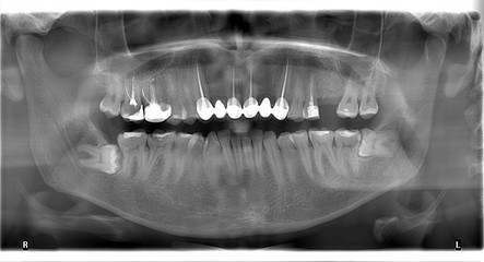 Panoramic dental X-Ray of the human skull and Teeth
