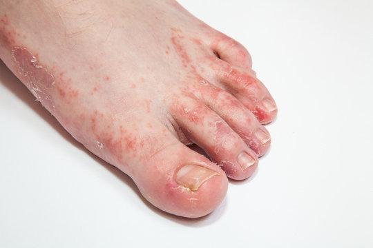 athlete's foot fungi