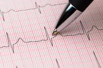 EKG Elektrokardiogramm eine Herzschlag Puls Aufzeichnung mit Kugelschreiber