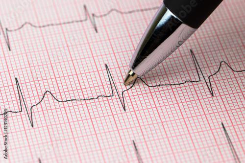 ekg elektrokardiogramm eine herzschlag puls aufzeichnung mit kugelschreiber imagens e fotos de. Black Bedroom Furniture Sets. Home Design Ideas