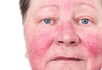 Elderly woman with rosacea, facial skin disorder, no make-up