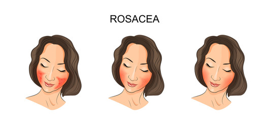 the girl's face, rosacea