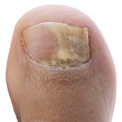 Fungus Infection on Nails of a Man's Toe