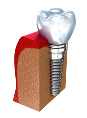 Dental implant - education model . 3D render