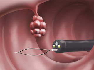 Surgical removal of an intestinal polyp by endoscope