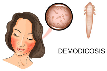 the woman's face affected by demodicosis. Demodex mite under mag