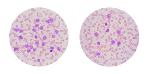 Microscopic view of a blood smear from leukemia patient showing