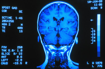 Gyro Scan Of The Back Of Brain