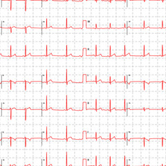Electrocardiogram red graph with marks on white, seamless pattern