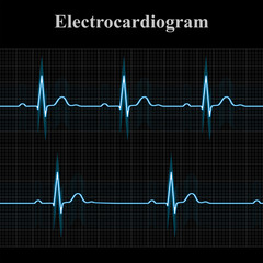 Normal and bradycardial ekg charts
