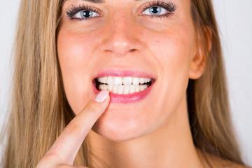 junge Frau mit weißen Zähnen zeigt auf Zähne