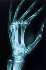Röntgenbild einer Hand Links