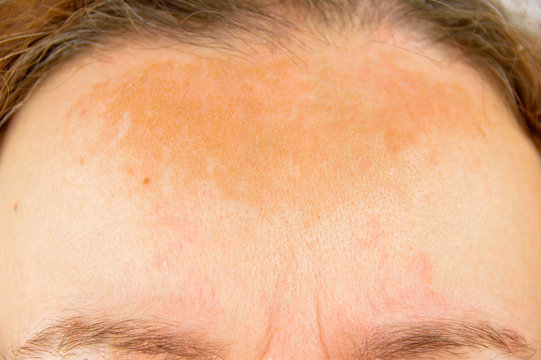woman with atopic dermatitis
