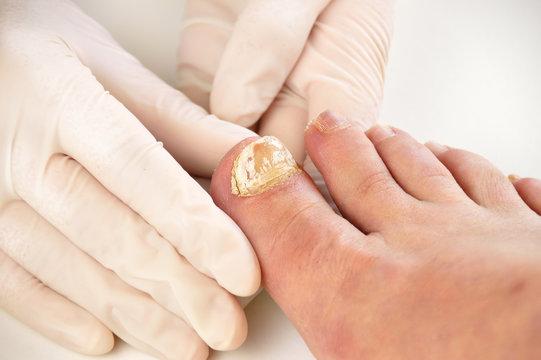 checking the disease big toe