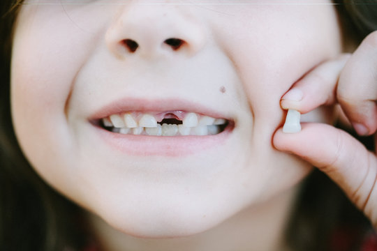 Young girl with one missing milk tooth.