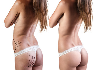 Female body before and after improvement.