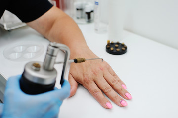 removal of warts in dermatology clinic