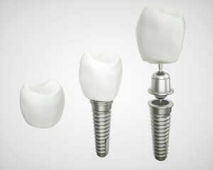 Tooth implant disassembled - (3d rendering)