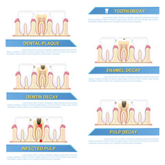 infographic dental caries, stages of tooth decay