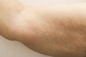 old women show fat and scratch mark , wrinkle of armpit isolate background