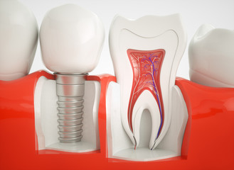 Healthy teeth and an implant