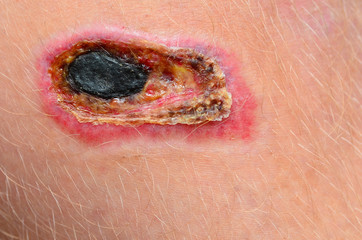 A necrotic scab on a human leg
