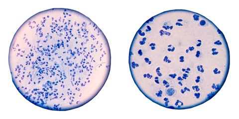 Blue white blood  cells on white background.