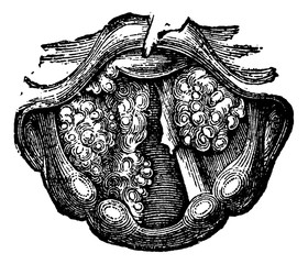 Multiple Papilloma of the Larynx, vintage engraving