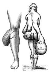 Fig. 767. Lipomas leg, Fig. 768. Multiple lipomas in a woman, vi
